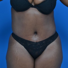 After Photo - Tummy Tuck - Case #21131 - Frontal View