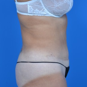 After Photo - Tummy Tuck - Case #21132 - Oblique View