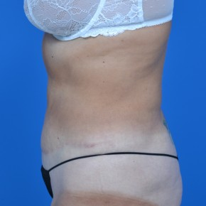 After Photo - Tummy Tuck - Case #21132 - Lateral View