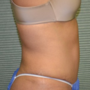 After Photo - Tummy Tuck - Case #21134 - Oblique View