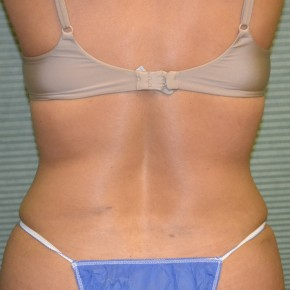 After Photo - Tummy Tuck - Case #21134 - Posterior View