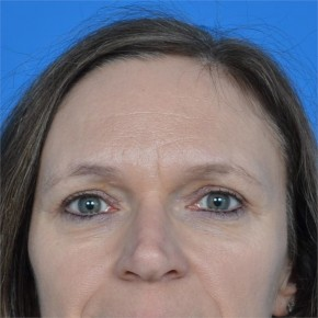 After Photo - Facial Rejuvenation - Case #21135 - Upper Eyelid Surgery (blepharoplasty) - Frontal View
