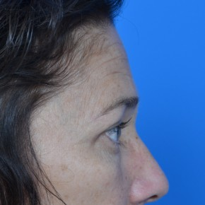 After Photo - Facial Rejuvenation - Case #21136 - Upper Eyelid Surgery (blepharoplasty) - Lateral View