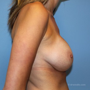 After Photo - Breast Augmentation - Case #21165 - A breast augmentation can produce the effect of a lift - Lateral View