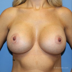 After Photo - Breast Augmentation - Case #21187 - Frontal View