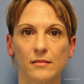 Before Photo - Fillers - Case #21195 - Bellafill cures an aged look in a 45 year old - Frontal View
