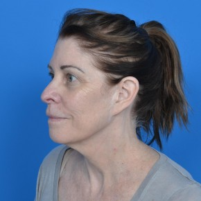 Before Photo - Facelift - Case #21196 - Facelift and Necklift - Oblique View