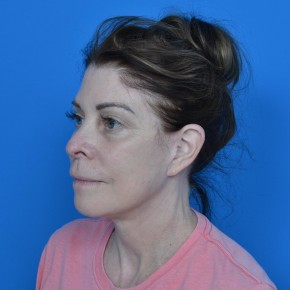 After Photo - Facelift - Case #21196 - Facelift and Necklift - Oblique View