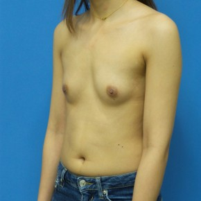 Before Photo - Breast Augmentation - Case #21282 - 25 year old - Submuscular - 255cc shaped silicone gel - 3 months post-op - Oblique View