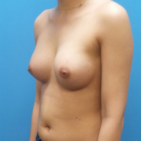 After Photo - Breast Augmentation - Case #21282 - 25 year old - Submuscular - 255cc shaped silicone gel - 3 months post-op - Oblique View