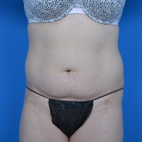 Before Photo - Tummy Tuck - Case #21287 - Frontal View
