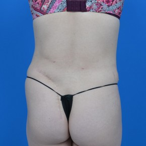 After Photo - Tummy Tuck - Case #21287 - Posterior View