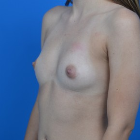 Before Photo - Breast Augmentation - Case #21288 - Breast Augmentation 300cc Mentor Memorygel smooth round high profile - Frontal View