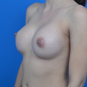 After Photo - Breast Augmentation - Case #21288 - Breast Augmentation 300cc Mentor Memorygel smooth round high profile - Frontal View