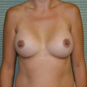 After Photo - Breast Augmentation - Case #21302 - Breast Augmentation with 325cc Mentor MemoryGel  - Frontal View