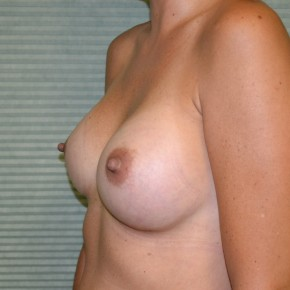 After Photo - Breast Augmentation - Case #21302 - Breast Augmentation with 325cc Mentor MemoryGel  - Oblique View