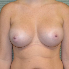 After Photo - Breast Augmentation - Case #21303 - Breast Augmentation 375cc - Frontal View