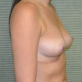 Before Photo - Breast Augmentation - Case #21303 - Breast Augmentation 375cc - Oblique View