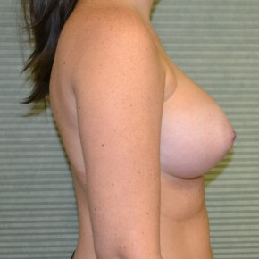 After Photo - Breast Augmentation - Case #21303 - Breast Augmentation 375cc - Lateral View