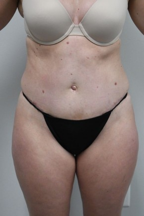 After Photo - Tummy Tuck - Case #21304 -  35-44 year old woman treated with a Tummy Tuck - Frontal View