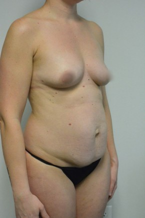 Before Photo - Tummy Tuck - Case #21304 -  35-44 year old woman treated with a Tummy Tuck - Oblique View