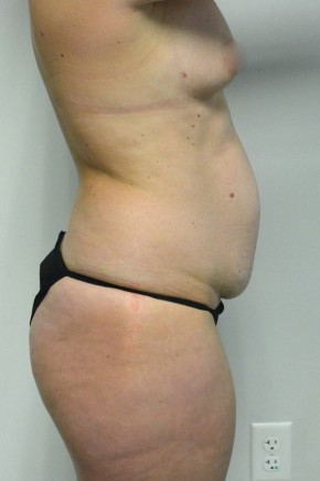 Before Photo - Tummy Tuck - Case #21304 -  35-44 year old woman treated with a Tummy Tuck - Lateral View
