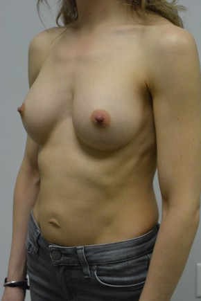 After Photo - Breast Augmentation - Case #21305 - 34-44 year woman and long term followup of pregnancy after breast augmentation - Oblique View