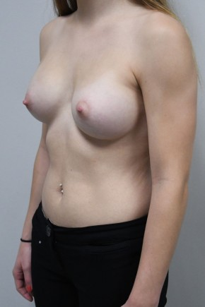 After Photo - Breast Augmentation - Case #21306 - 23 yo woman with breast augmentation who wants a natural appearance. - Oblique View