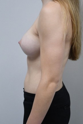 After Photo - Breast Augmentation - Case #21306 - 23 yo woman with breast augmentation who wants a natural appearance. - Lateral View