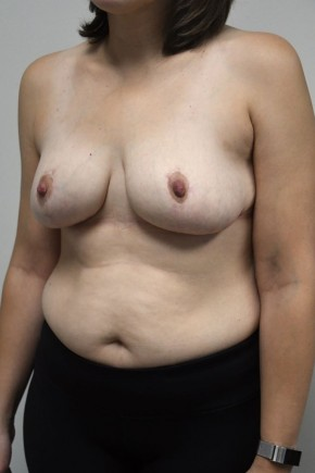 After Photo - Breast Reduction - Case #21307 - 35-44 year old woman treated with a breast reduction - Oblique View