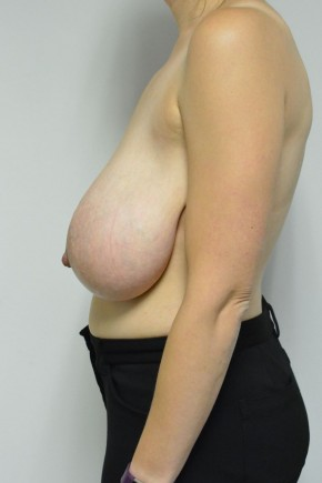 Before Photo - Breast Reduction - Case #21307 - 35-44 year old woman treated with a breast reduction - Lateral View