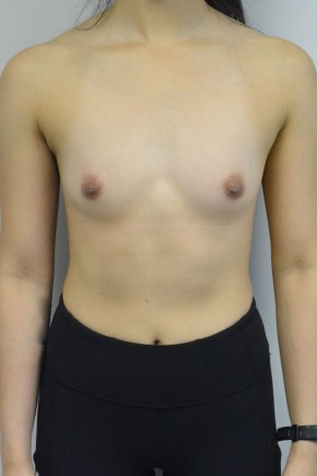 Before Photo - Breast Augmentation - Case #21308 - 22 year old woman with breast augmentation - Frontal View