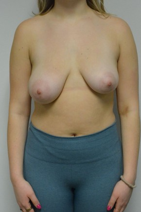 Before Photo - Breast Lift - Case #21309 - 17 yo woman with breast lift/ reduction for severe asymmetry - Frontal View