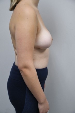 After Photo - Breast Lift - Case #21309 - 17 yo woman with breast lift/ reduction for severe asymmetry - Lateral View