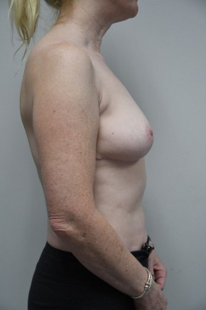 After Photo - Breast Reduction - Case #21310 - 45-54 year old woman treated with Breast Reduction - Lateral View