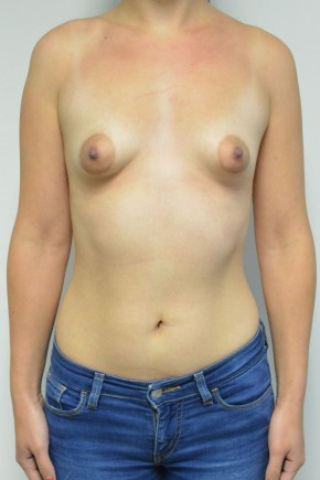 Before Photo - Breast Augmentation - Case #21311 - 25-34 year old woman treated with Breast Augmentation for Tuberous breast deformity using Ideal Implants - Frontal View