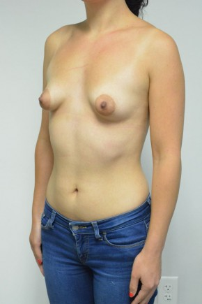 Before Photo - Breast Augmentation - Case #21311 - 25-34 year old woman treated with Breast Augmentation for Tuberous breast deformity using Ideal Implants - Oblique View