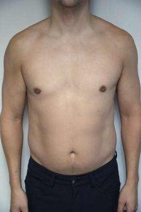 After Photo - Gynecomastia - Case #21312 - 34-44 year old man with gynecomastia - Frontal View