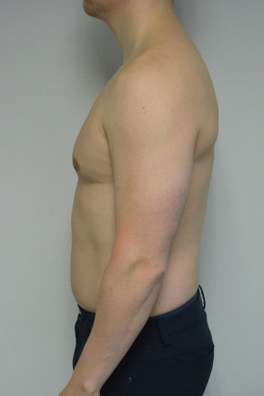 Before Photo - Gynecomastia - Case #21312 - 34-44 year old man with gynecomastia - Lateral View