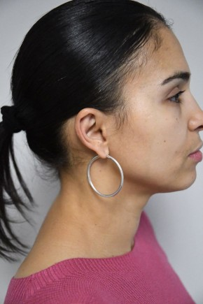 After Photo - Ear Surgery - Case #21313 - 35-44 year old woman treated with Ear Surgery - Oblique View