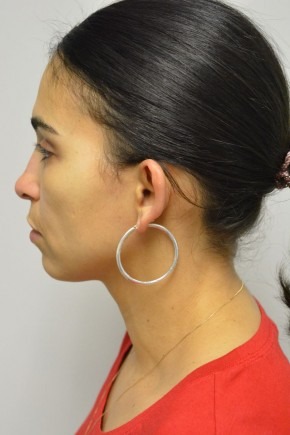 Before Photo - Ear Surgery - Case #21313 - 35-44 year old woman treated with Ear Surgery - Lateral View