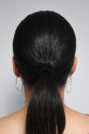 After Photo - Ear Surgery - Case #21313 - 35-44 year old woman treated with Ear Surgery - Posterior View