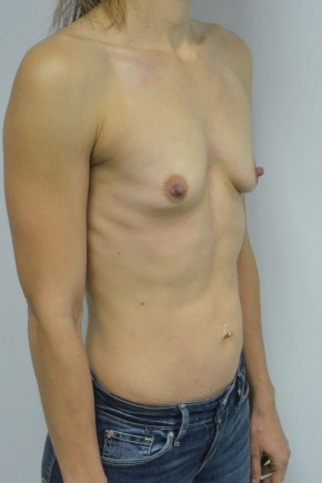 Before Photo - Breast Augmentation - Case #21315 - 25-34 year old woman treated with Breast Augmentation - Oblique View