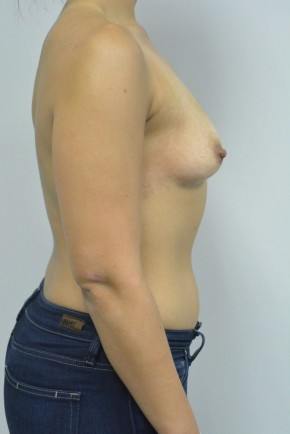 Before Photo - Breast Augmentation - Case #21316 - 23 yo woman with breast asymmetry treated with breast augmentation - Lateral View