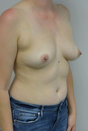Before Photo - Breast Augmentation - Case #21317 - 34-44 year old woman with breast asymmetry treated with breast augmentation using Ideal Implants - Oblique View