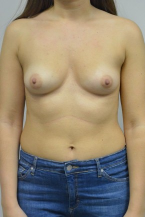 Before Photo - Breast Augmentation - Case #21318 - 25-34 year old woman treated with Breast Augmentation using Ideal implants - Frontal View
