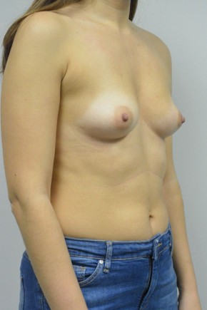 Before Photo - Breast Augmentation - Case #21318 - 25-34 year old woman treated with Breast Augmentation using Ideal implants - Oblique View