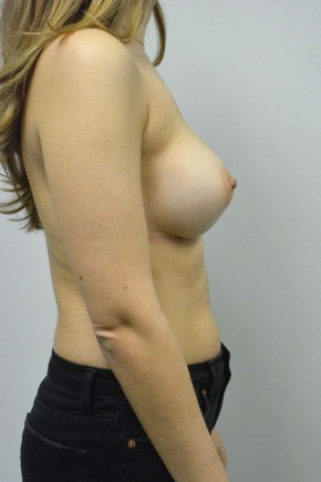 After Photo - Breast Augmentation - Case #21318 - 25-34 year old woman treated with Breast Augmentation using Ideal implants - Lateral View