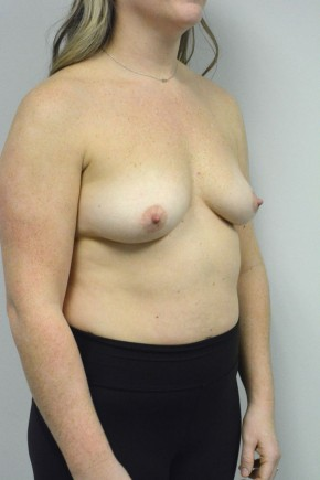 Before Photo - Breast Augmentation - Case #21319 - 25-34 year old woman treated with Breast Augmentation using Ideal implants - Oblique View