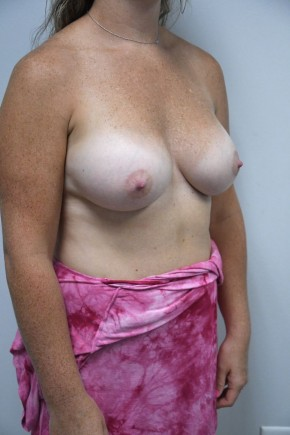 After Photo - Breast Augmentation - Case #21319 - 25-34 year old woman treated with Breast Augmentation using Ideal implants - Oblique View